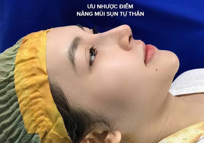 phẫu thuật nâng mũi bằng sụn tự thân