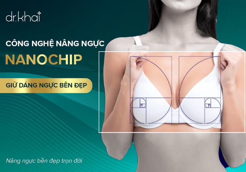 công nghệ nâng ngực