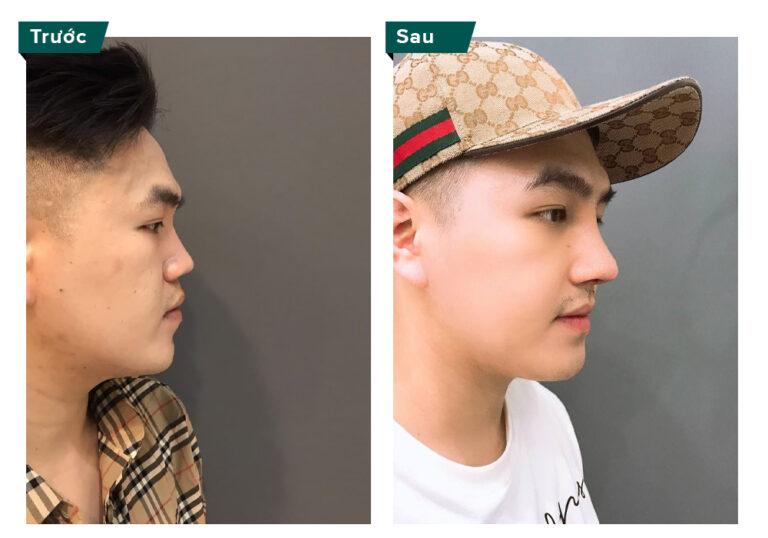 <strong>Các dáng mũi đẹp cho nam nữ được ưa chuộng nhất hiện nay</strong>