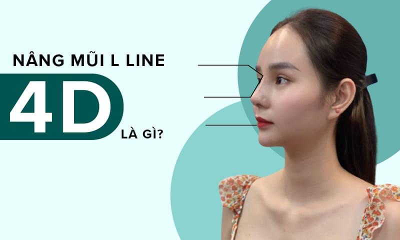 nâng mũi l line 4d