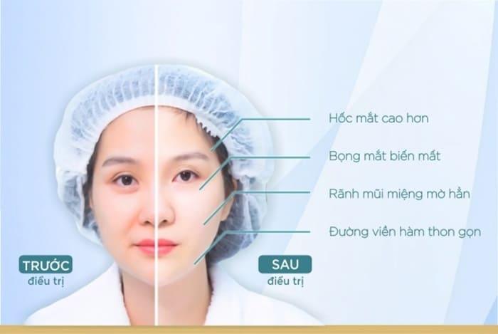 tác dụng căng da mặt bằng chỉ collagen