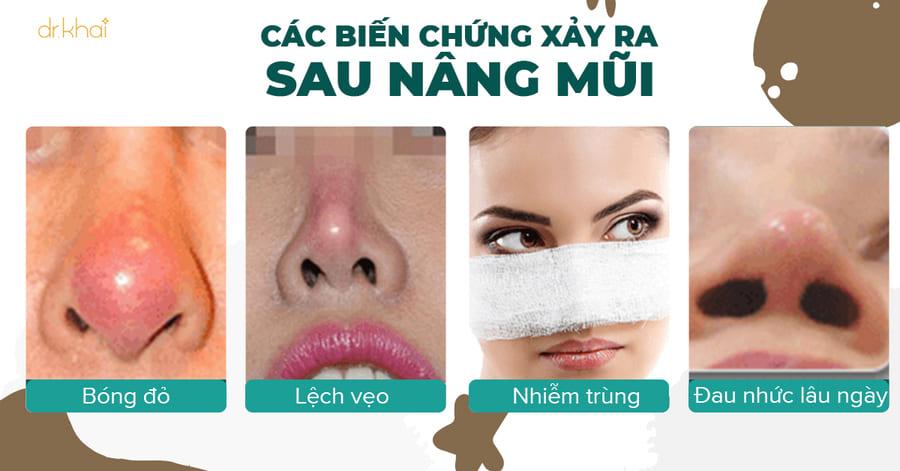 các biến chứng nâng mũi