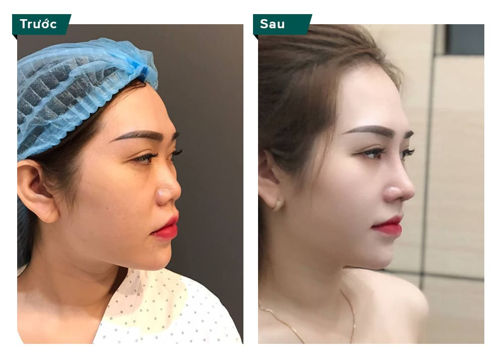 trước và sau nâng mũi s line vĩnh viễn